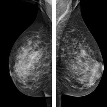 Routine mammography images A nodular lesion with non-well deifined borders was identified at the right midline upper breast on the MLO view using the standard mammography. Ultrasound shows a solid nodule with well defined borders (associated with calcifications).
